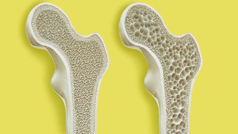 متخصص تغذیه اصفهان کاهش وزن مناسب و پوکی استخوان